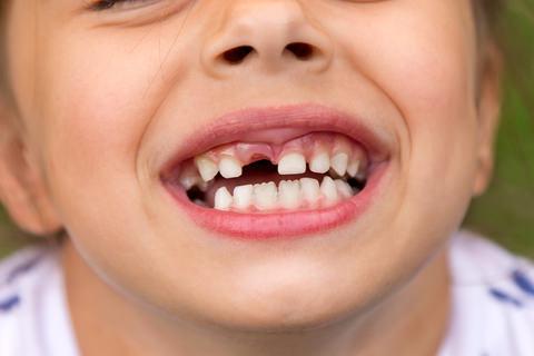 Kids teeth can be stubborn
