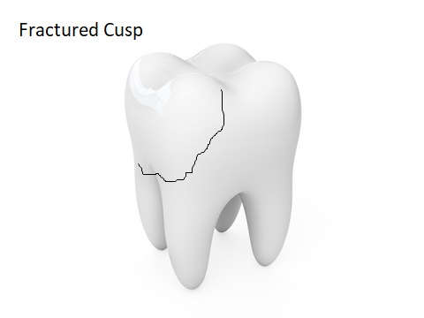 A fractured cusp tooth