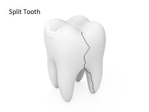 A split tooth