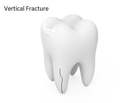 A vertical fracture