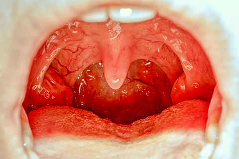 Infected tonsils