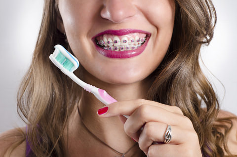 A lady with braces brushing her teeth