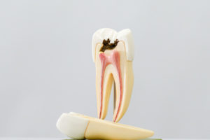 Decay reaching your dentin feature image
