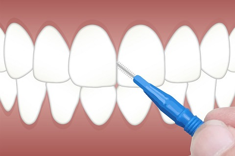 Interdental brush fitting through the front teeth
