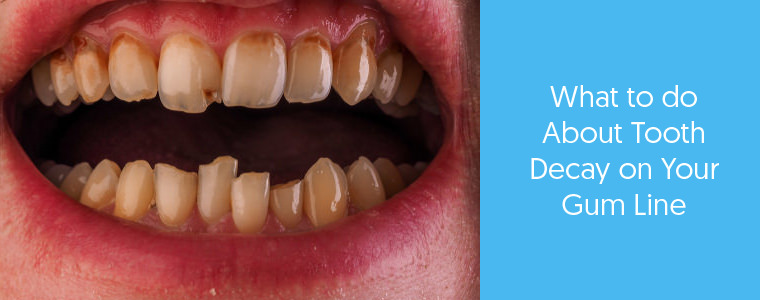 Tooth decay on the gum line feature