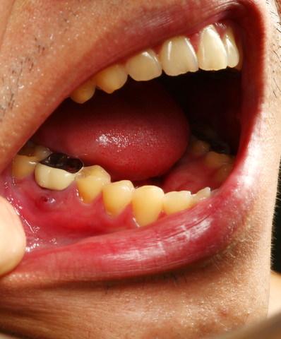 Bleeding gums and a cavity