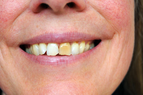A lady with a stained tooth