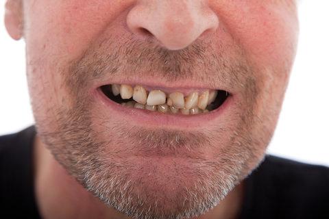 Weak and cracked teeth