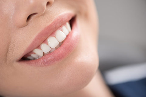A lady who has had cosmetic dental work