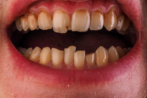 Tooth decay around gum line