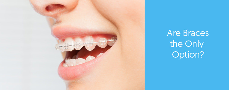 Do you need braces to fix crooked teeth? feature image