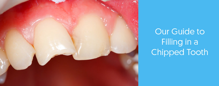 Filling a chipped tooth feature image