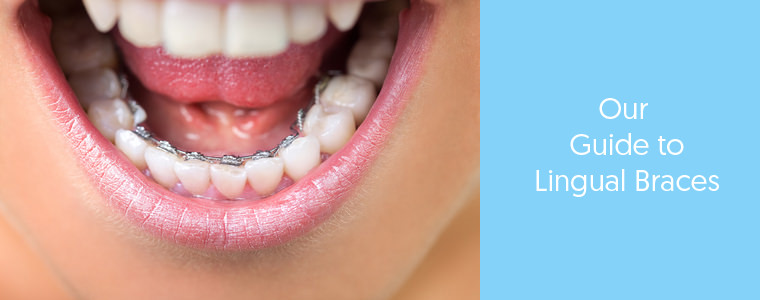 What are lingual braces? feature image Dental Aware