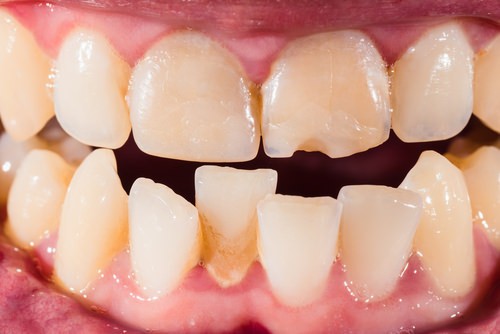 Dental work needed prior to getting Invisalign