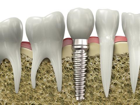 A dental Implant Illustration