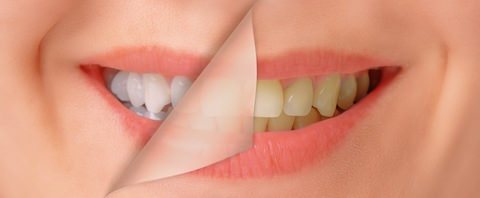 Teeth whitening before cosmetic treatments?
