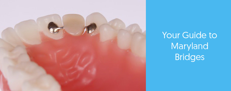What is a Maryland bridge? Dental Aware feature image