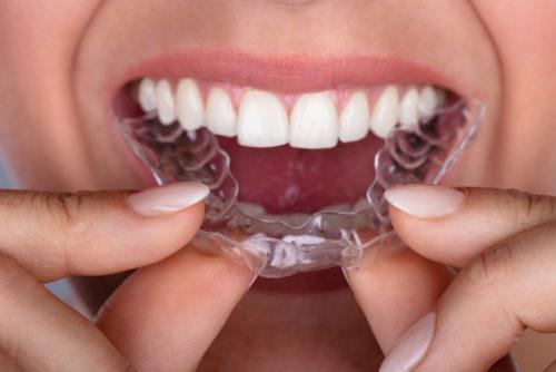 Invisalign mouth tray