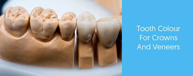 Tooth Colour for Crowns and Veneers - Dental Aware feature image