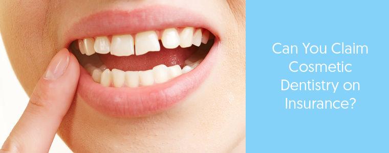 Dental Insurance for Cosmetic Dentistry