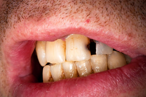 Tooth decay can cause sensitivity in your teeth