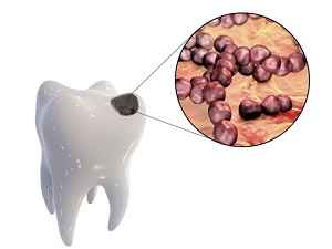 Reversing Tooth Decay and Healing Cavities Naturally? Feature image