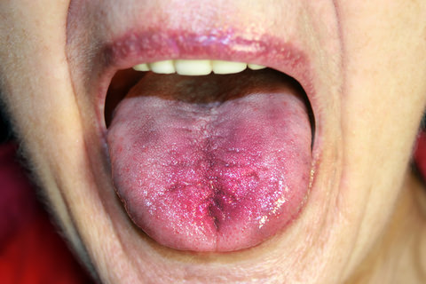 A lady with Burning Mouth Syndrome