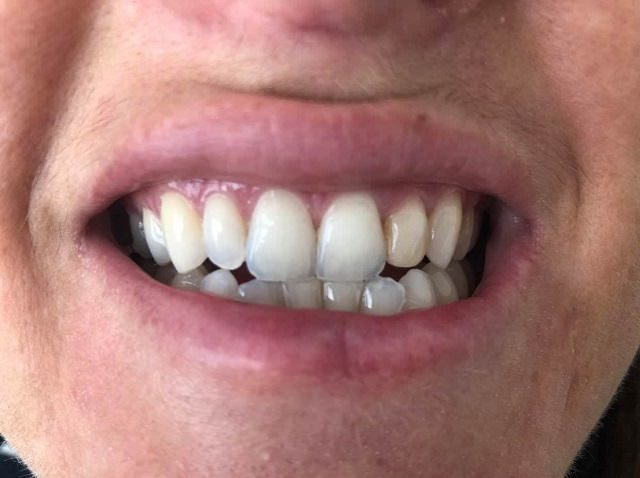 Bondi Smile after photo
