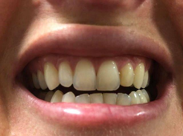 Bondi Smile before photo