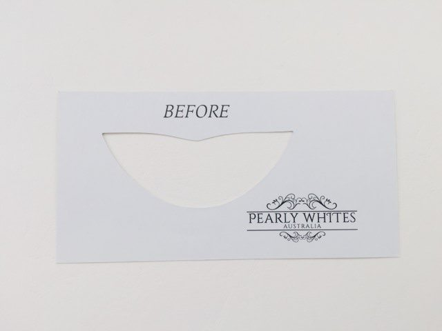 """""""Before"""" pearly whites teeth shade card"""