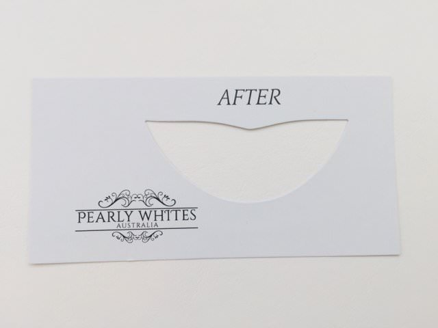 """The Pearly Whites """"After"""" teeth shade cutout"""