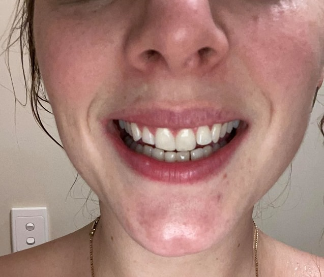 After photo using the the Pearly Whites Starter kit