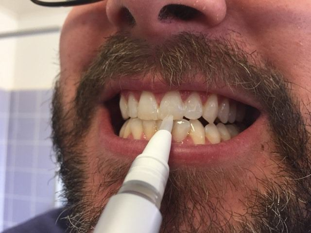 Applying the snow whitening serum to my teeth