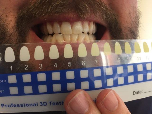 Before using the Snow Teeth Whitening Kit