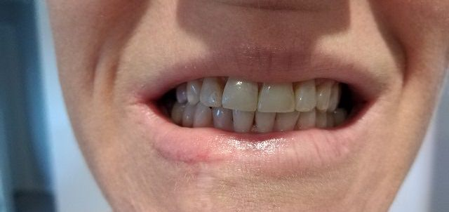 After photo of Smile Bright White