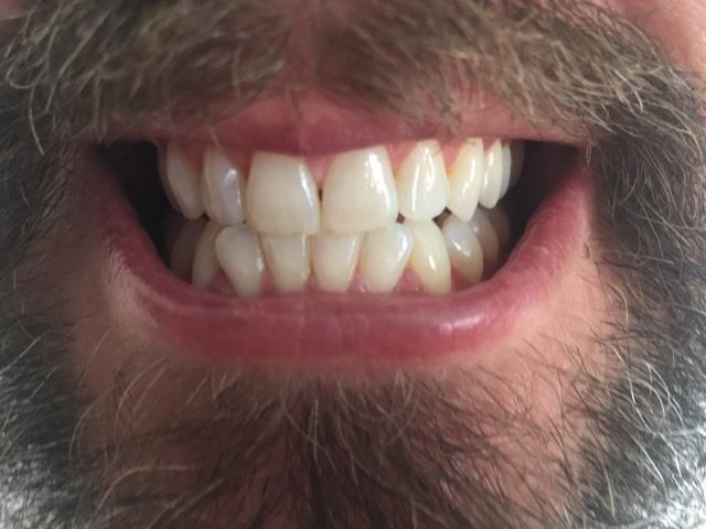 4 weeks in using the Colgate Optic White Stain-Less White Toothpaste