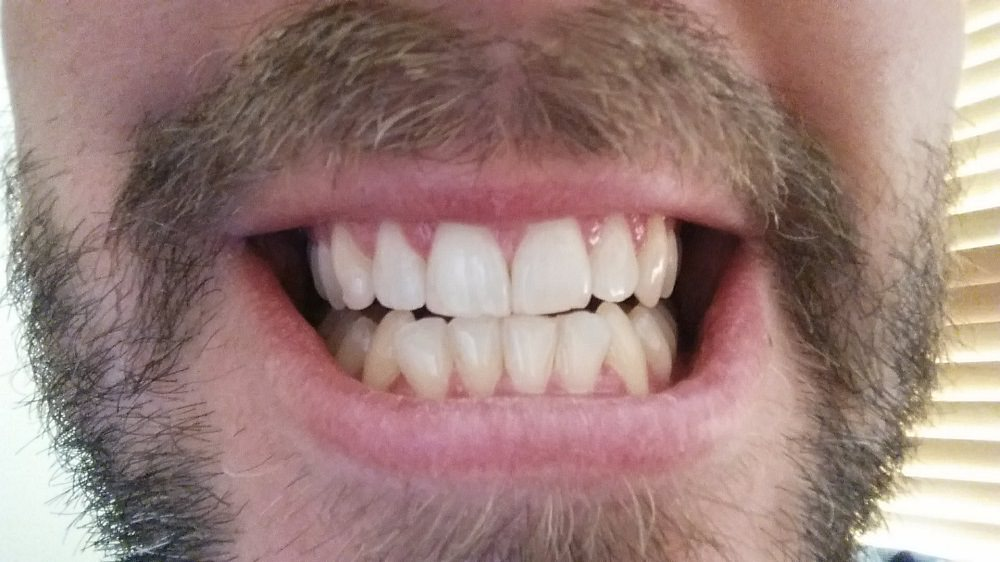 After the first treatment of Zoom Whitening