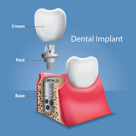 There are 3 parts to a dental implant