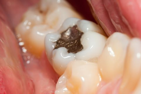 A gold dental filling