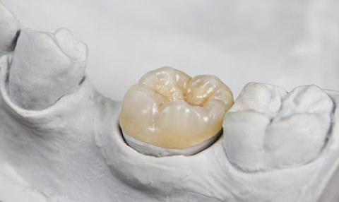 A dental onlay