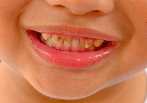 A child with dental caries
