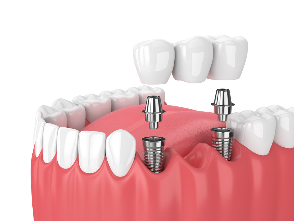 3D image of a dental implant