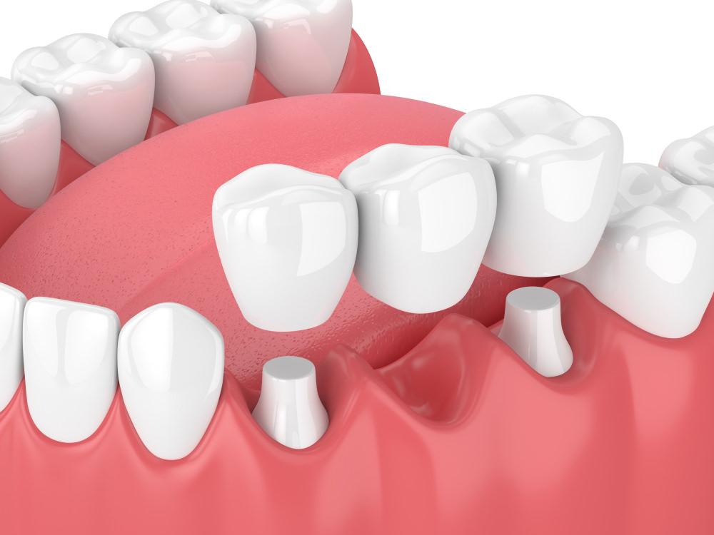 3D illustration of a 3 unit dental bridge