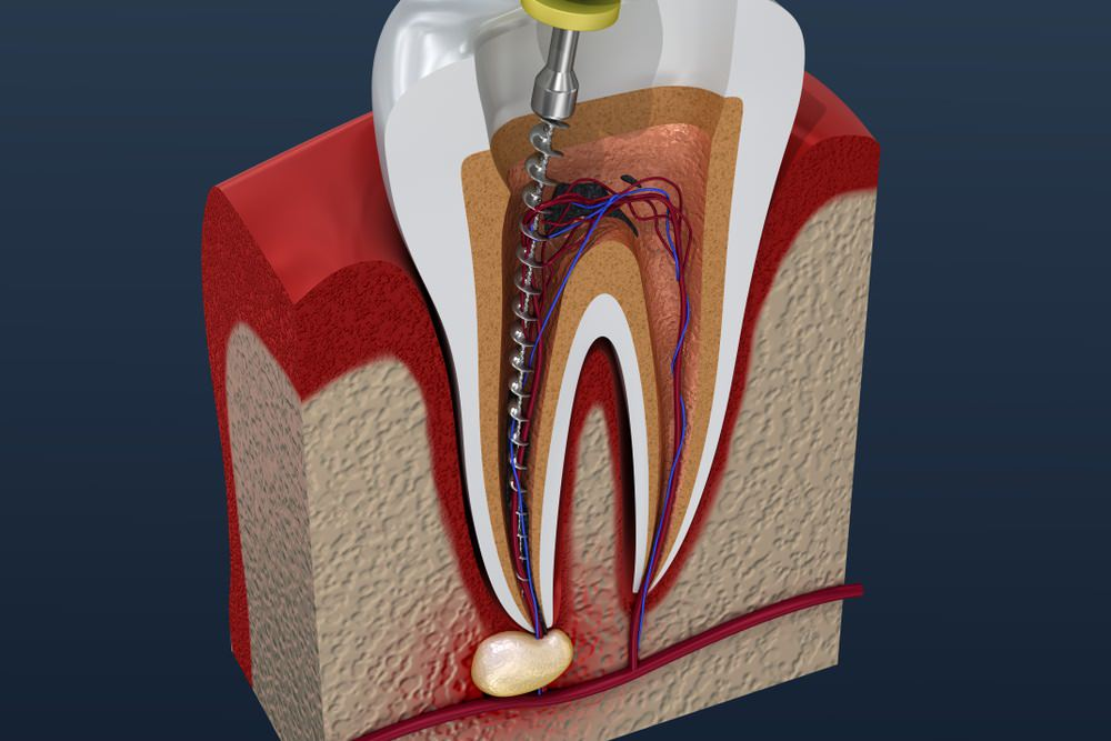 3D image of a Root Canal Treatment