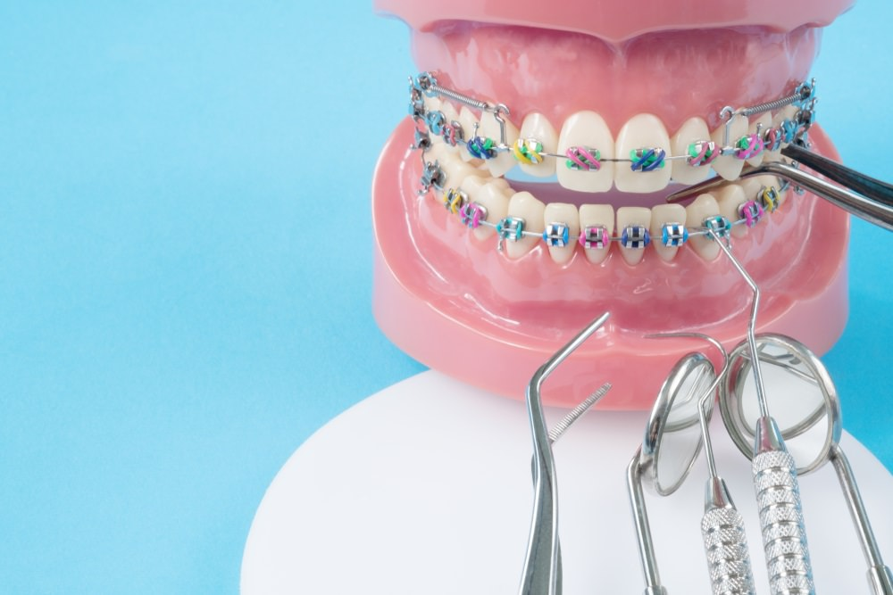 traditional braces on a teeth model