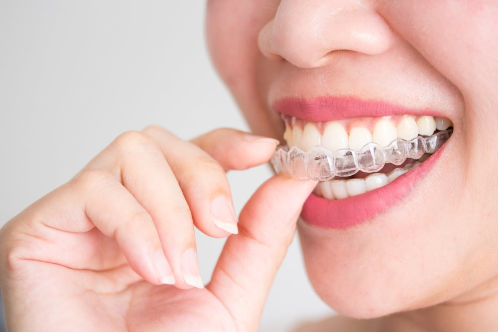 A woman wearing a clear dental aligner
