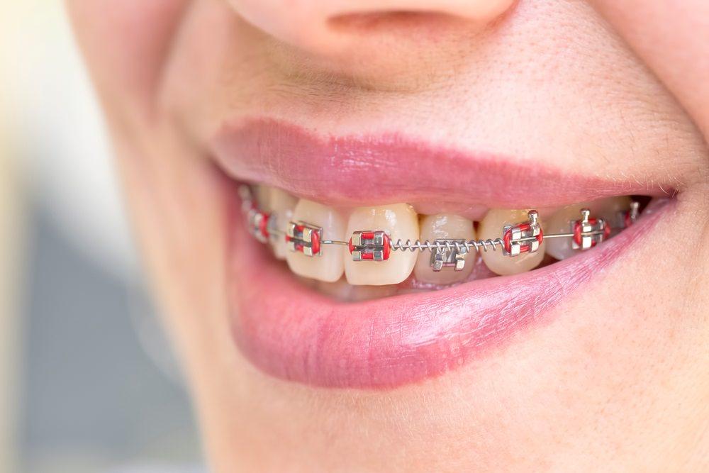 A lady wearing dental braces