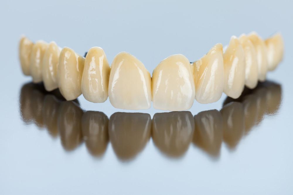 Dental cost bridge feature image