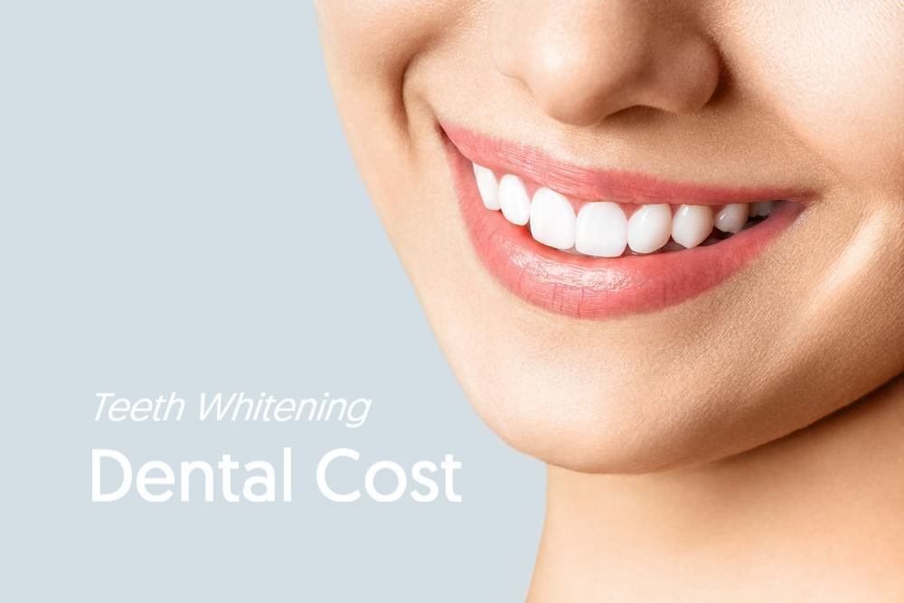 Dental Cost teeth whitening feature image