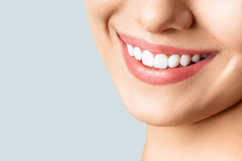 Dental costs teeth whitening feature image dental aware